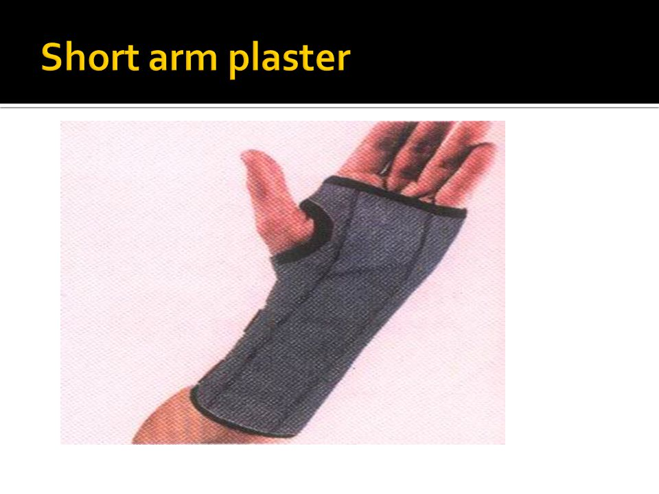 Short arm plaster
