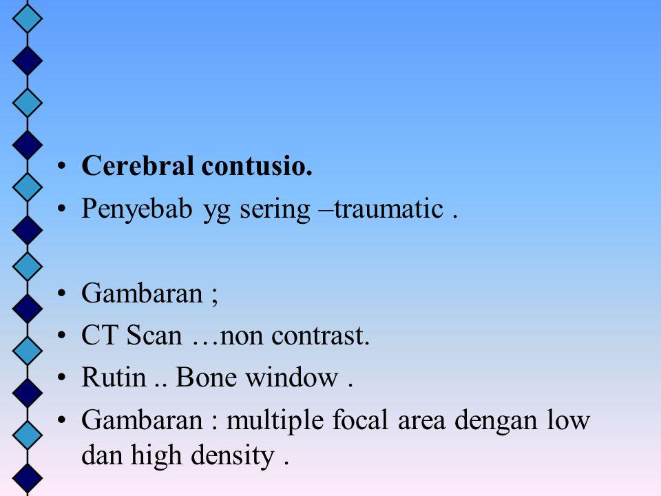 Cerebral contusio. Penyebab yg sering –traumatic . Gambaran ; CT Scan …non contrast. Rutin .. Bone window .