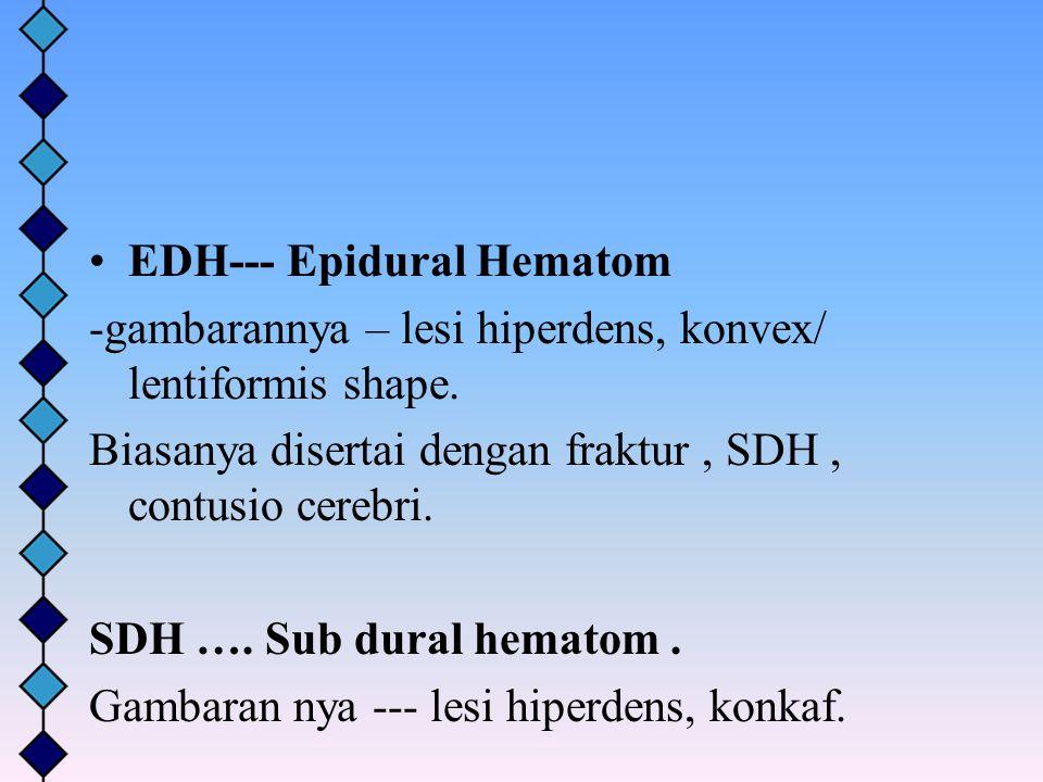 EDH--- Epidural Hematom