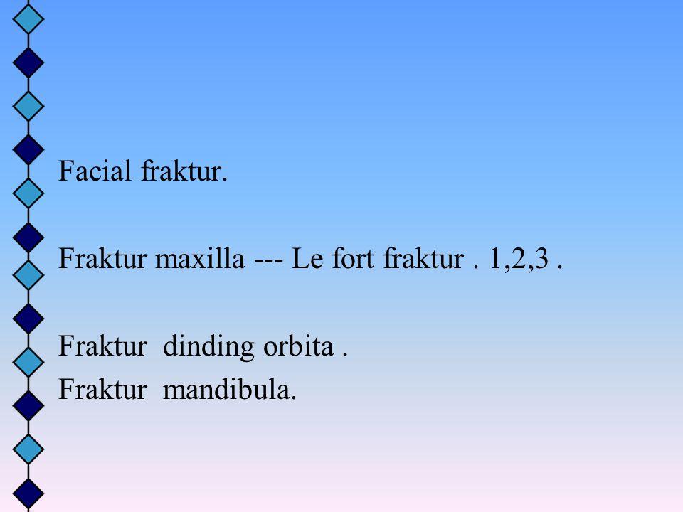 Facial fraktur. Fraktur maxilla --- Le fort fraktur. 1,2,3