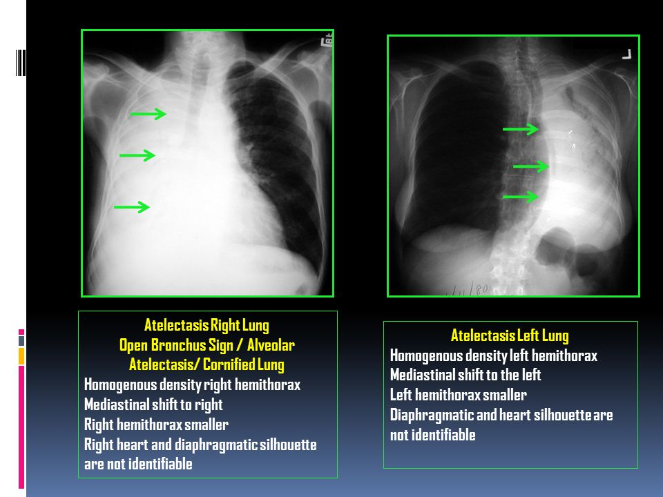 Atelectasis Right Lung Open Bronchus Sign / Alveolar Atelectasis/ Cornified Lung