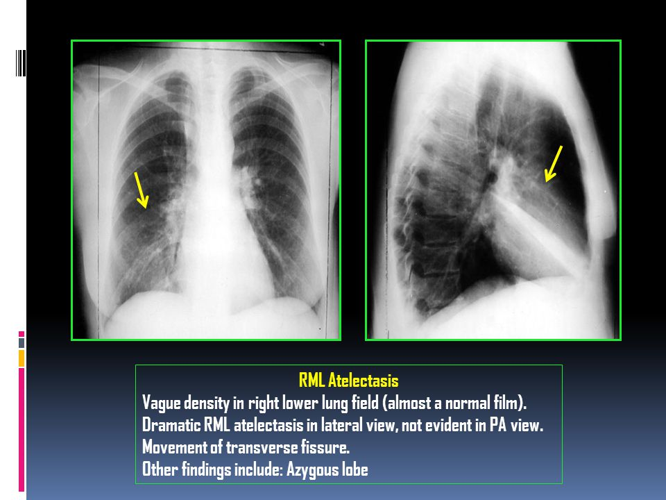 RML Atelectasis Vague density in right lower lung field (almost a normal film).