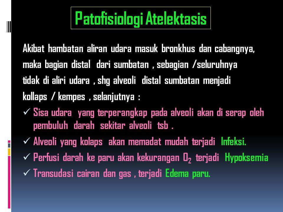 Patofisiologi Atelektasis
