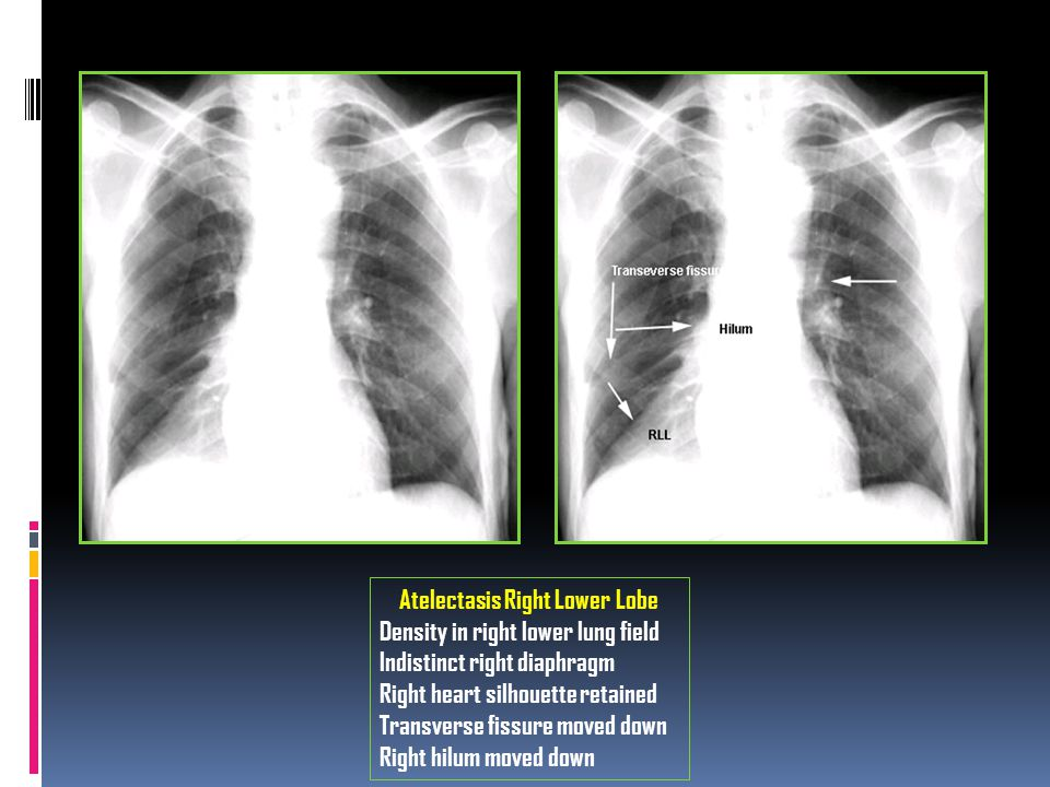 Atelectasis Right Lower Lobe
