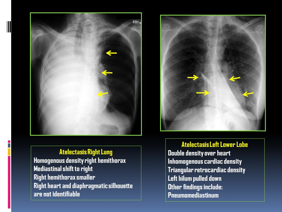 Atelectasis Left Lower Lobe Atelectasis Right Lung
