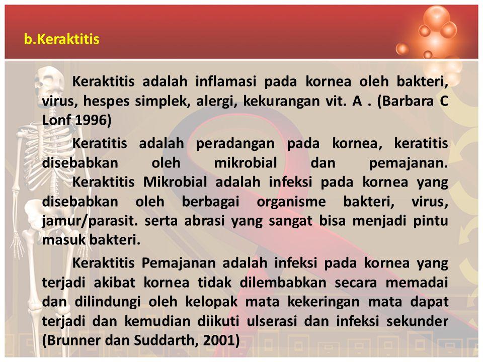 b.Keraktitis Keraktitis adalah inflamasi pada kornea oleh bakteri, virus, hespes simplek, alergi, kekurangan vit.