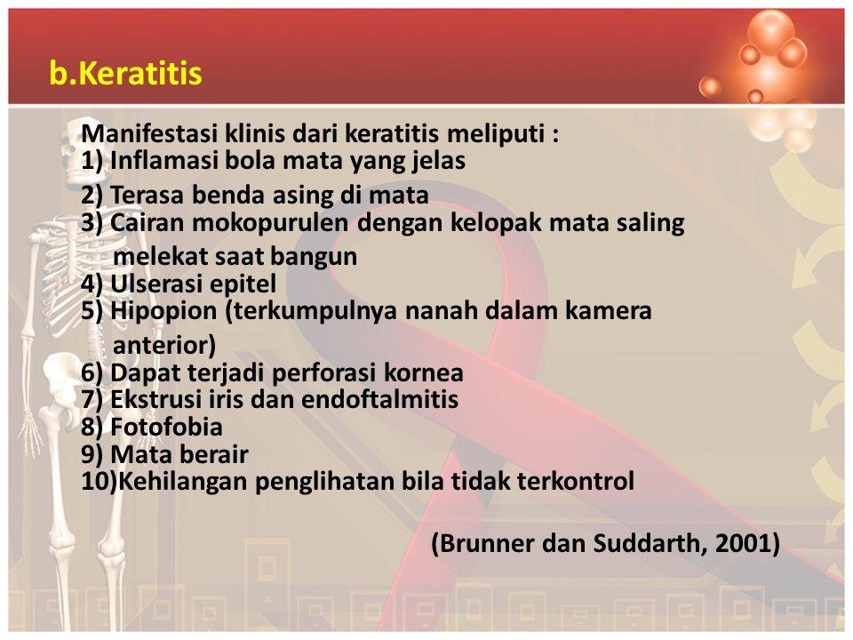 b.Keratitis Manifestasi klinis dari keratitis meliputi : 1) Inflamasi bola mata yang jelas.