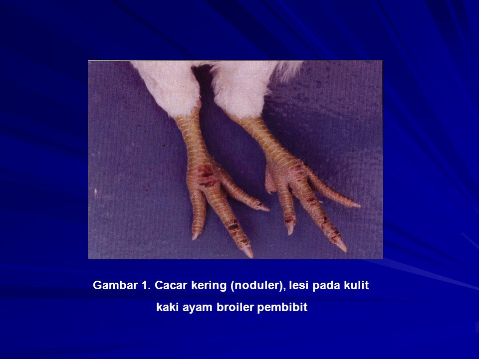 Gambar 1. Cacar kering (noduler), lesi pada kulit