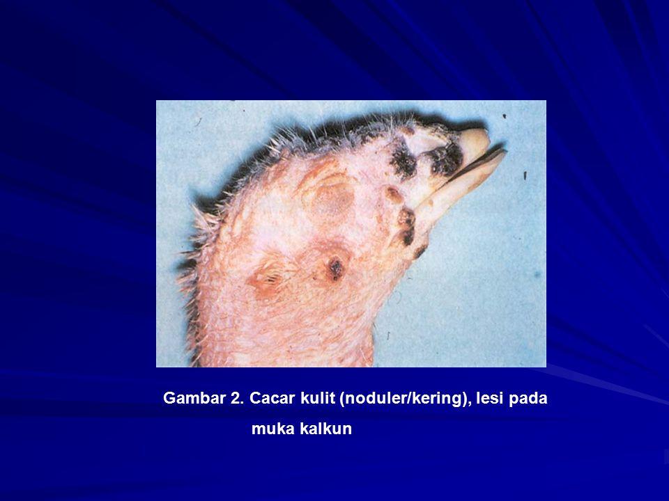 Gambar 2. Cacar kulit (noduler/kering), lesi pada