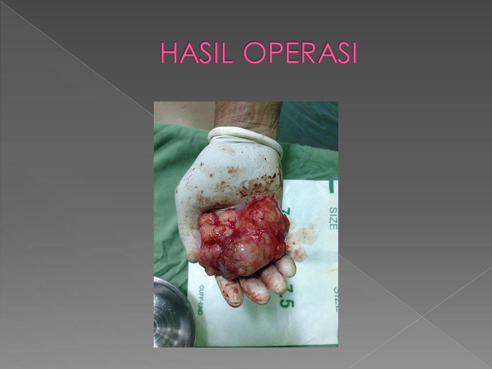 HASIL OPERASI