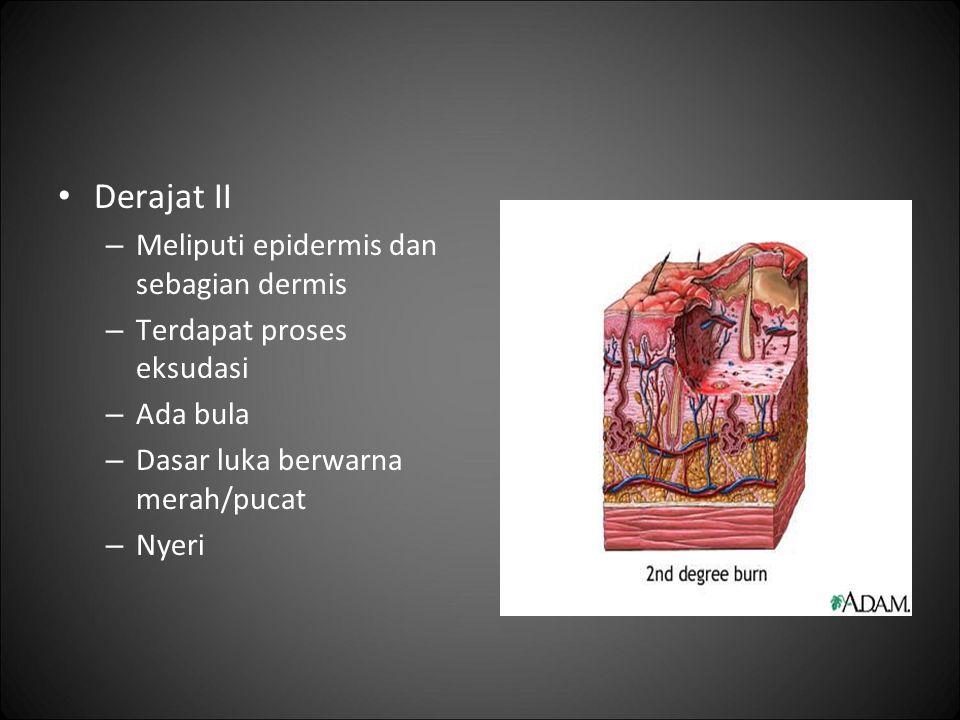 Derajat II Meliputi epidermis dan sebagian dermis