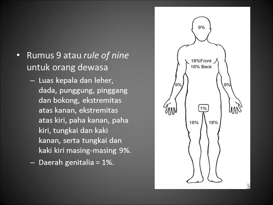 Rumus 9 atau rule of nine untuk orang dewasa