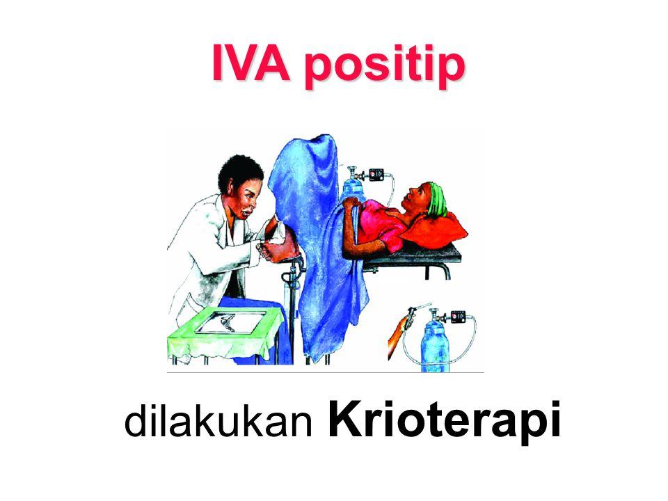 IVA positip dilakukan Krioterapi