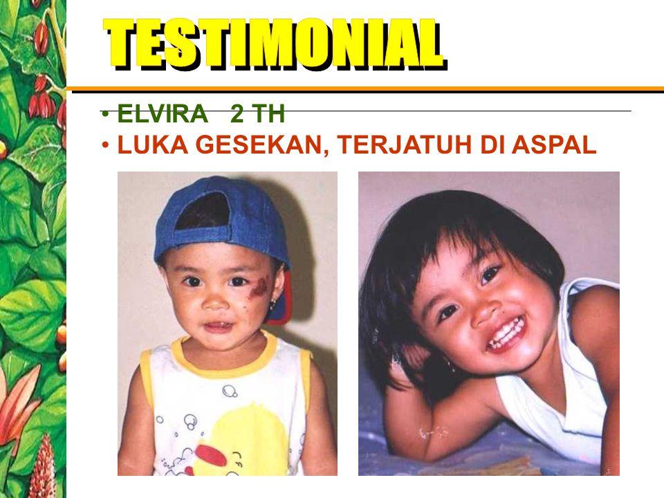 TESTIMONIAL ELVIRA 2 TH LUKA GESEKAN, TERJATUH DI ASPAL