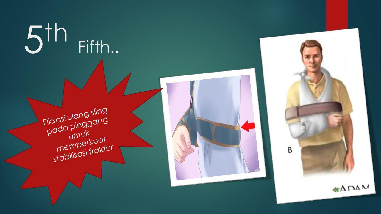Fiksasi ulang sling pada pinggang untuk memperkuat stabilisasi fraktur