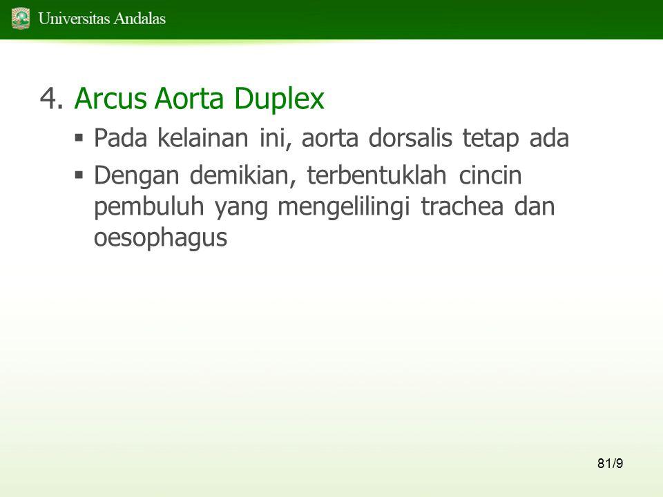 4. Arcus Aorta Duplex Pada kelainan ini, aorta dorsalis tetap ada