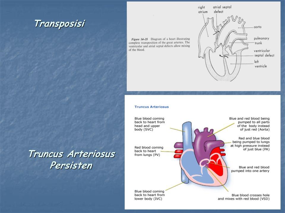 Truncus Arteriosus Persisten