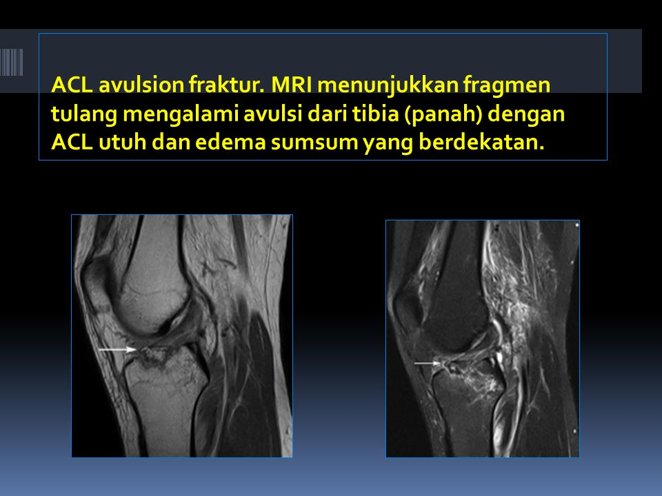 ACL avulsion fraktur.