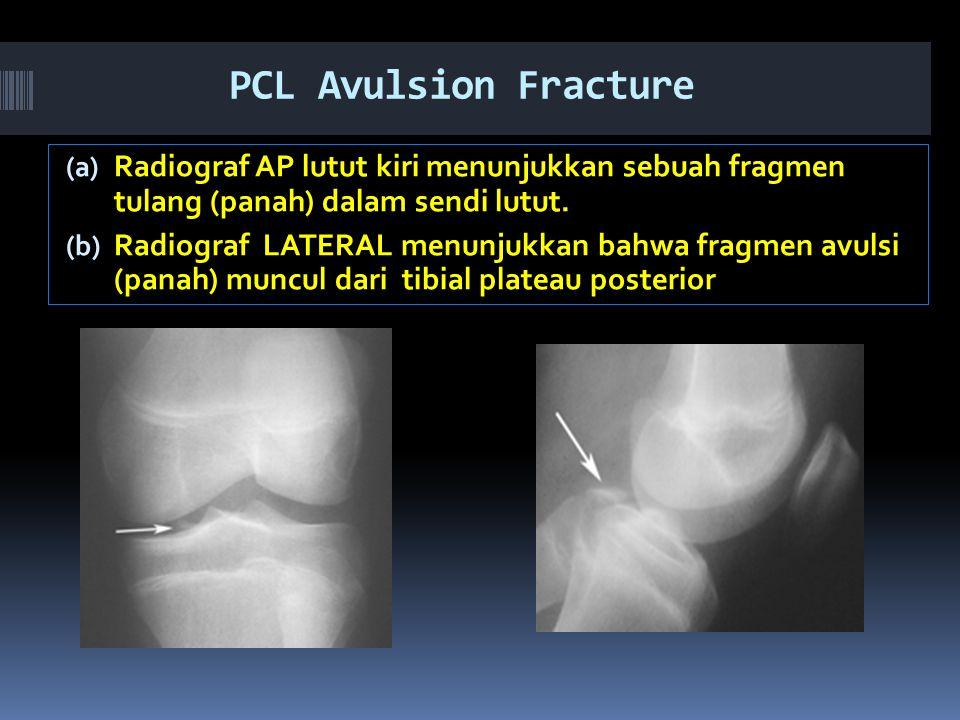 PCL Avulsion Fracture Radiograf AP lutut kiri menunjukkan sebuah fragmen tulang (panah) dalam sendi lutut.