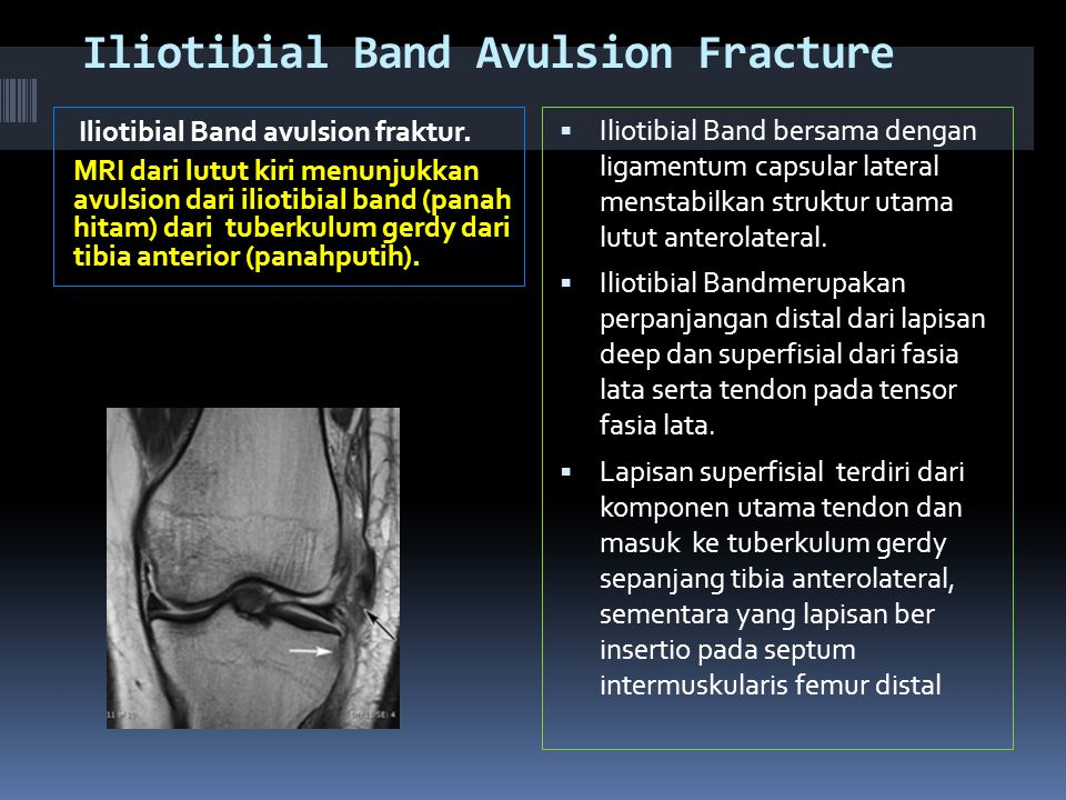 Iliotibial Band Avulsion Fracture
