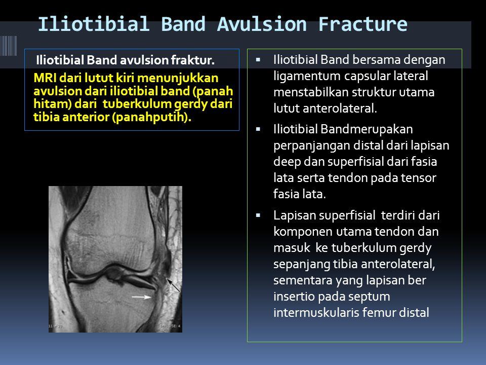Iliotibial Band Avulsion Fracture