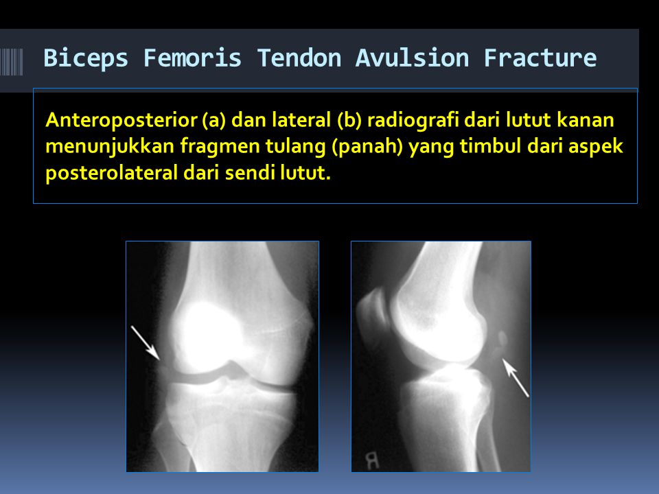 Biceps Femoris Tendon Avulsion Fracture
