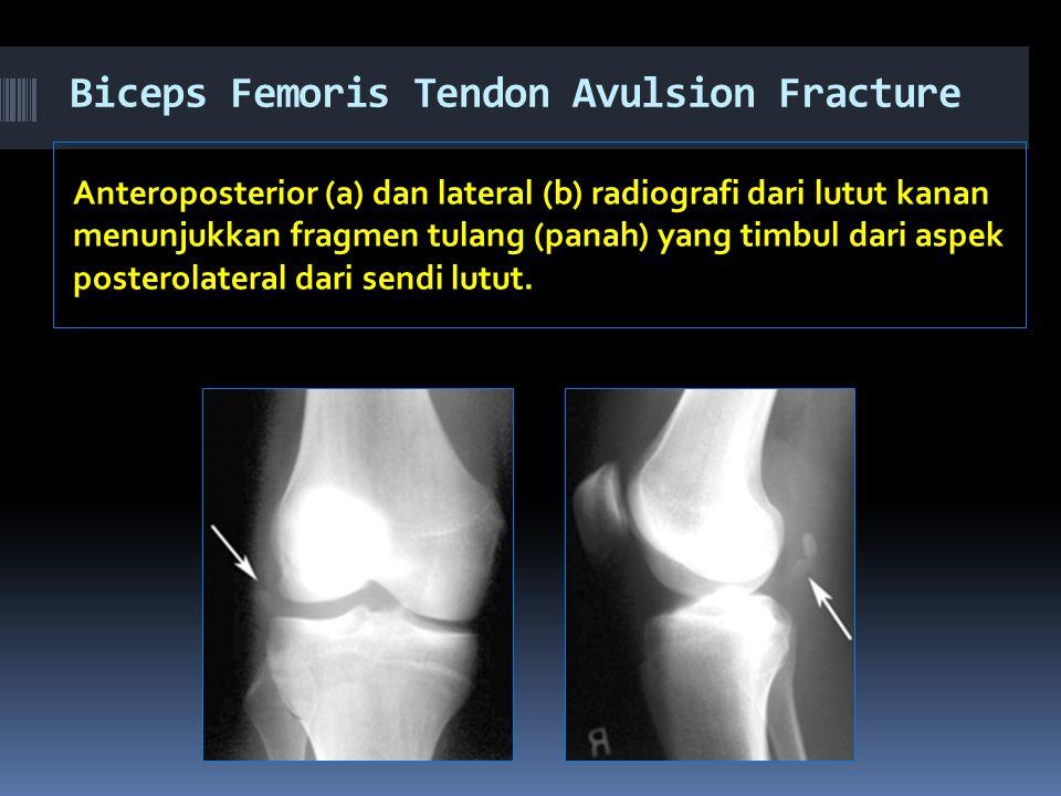 Biceps Femoris Tendon Avulsion Fracture