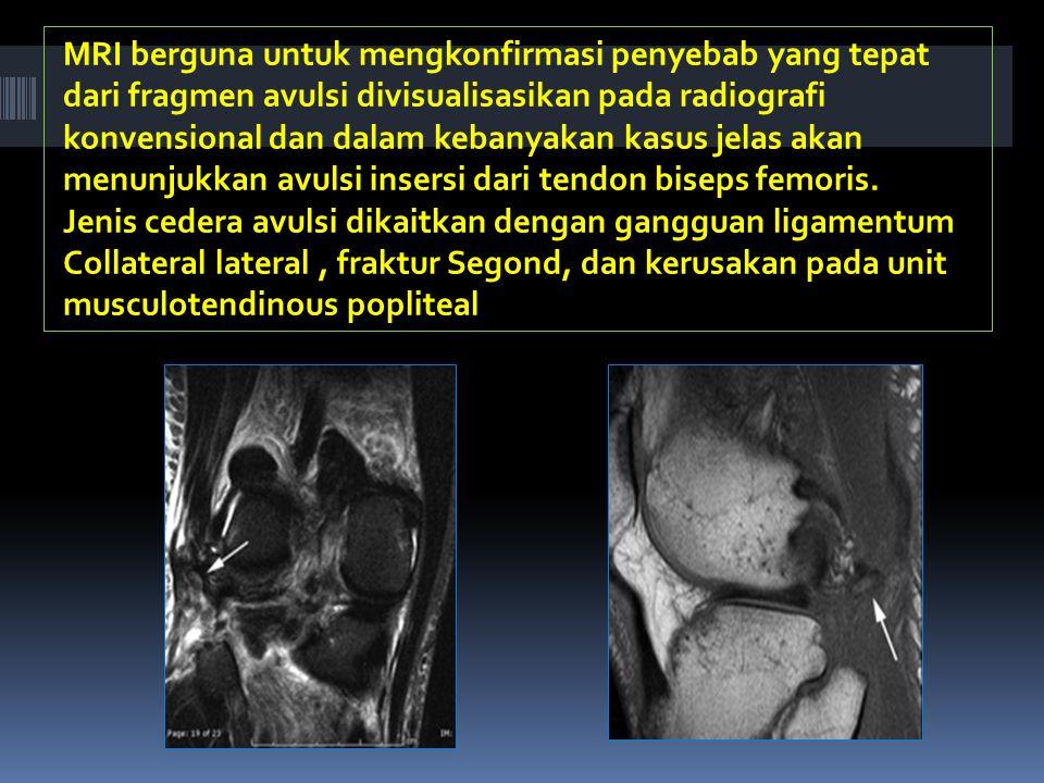 MRI berguna untuk mengkonfirmasi penyebab yang tepat dari fragmen avulsi divisualisasikan pada radiografi konvensional dan dalam kebanyakan kasus jelas akan menunjukkan avulsi insersi dari tendon biseps femoris.