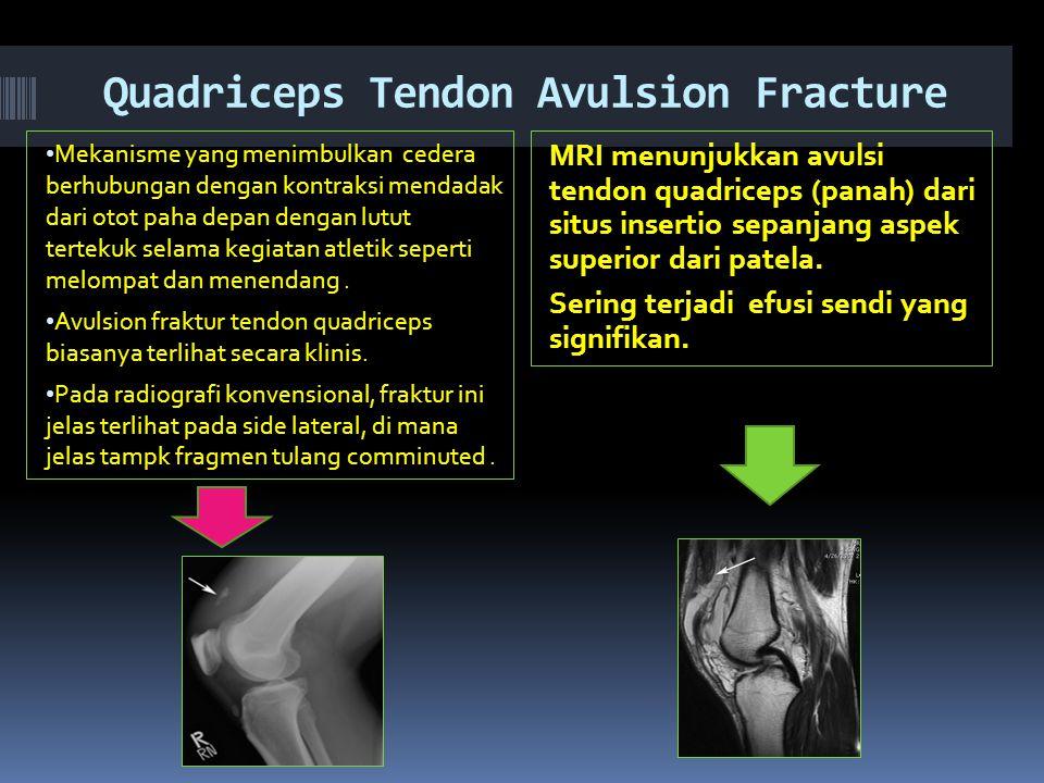 Quadriceps Tendon Avulsion Fracture