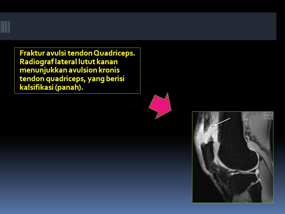 Fraktur avulsi tendon Quadriceps