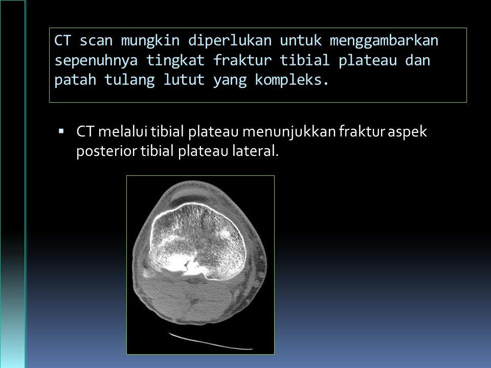 CT scan mungkin diperlukan untuk menggambarkan sepenuhnya tingkat fraktur tibial plateau dan patah tulang lutut yang kompleks.