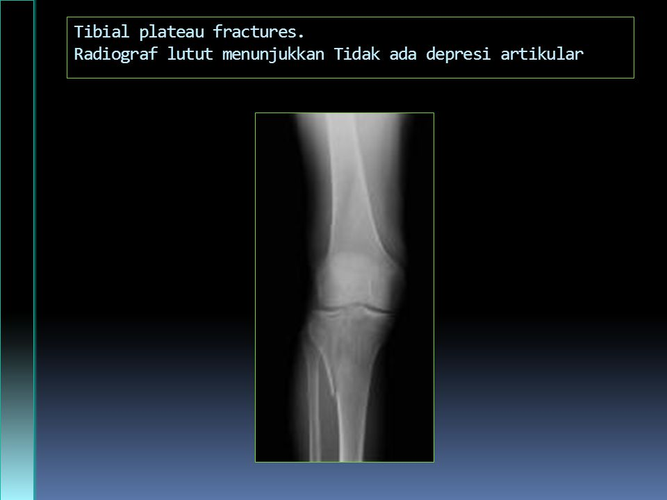 Tibial plateau fractures