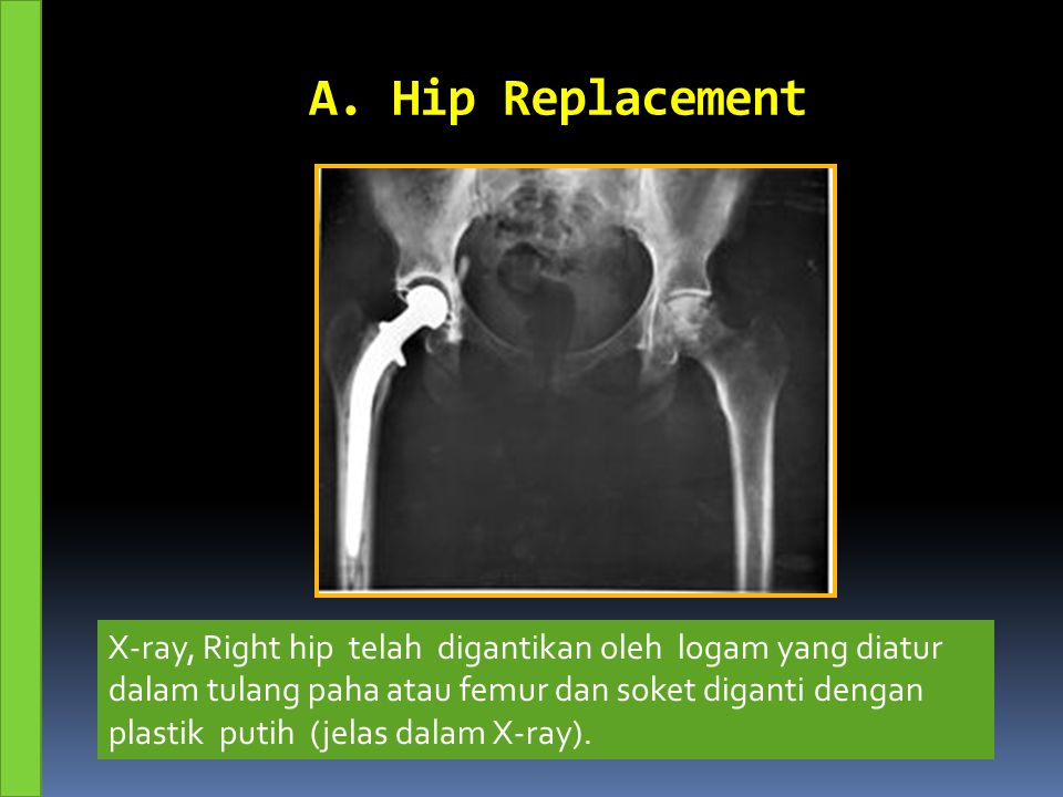 A. Hip Replacement