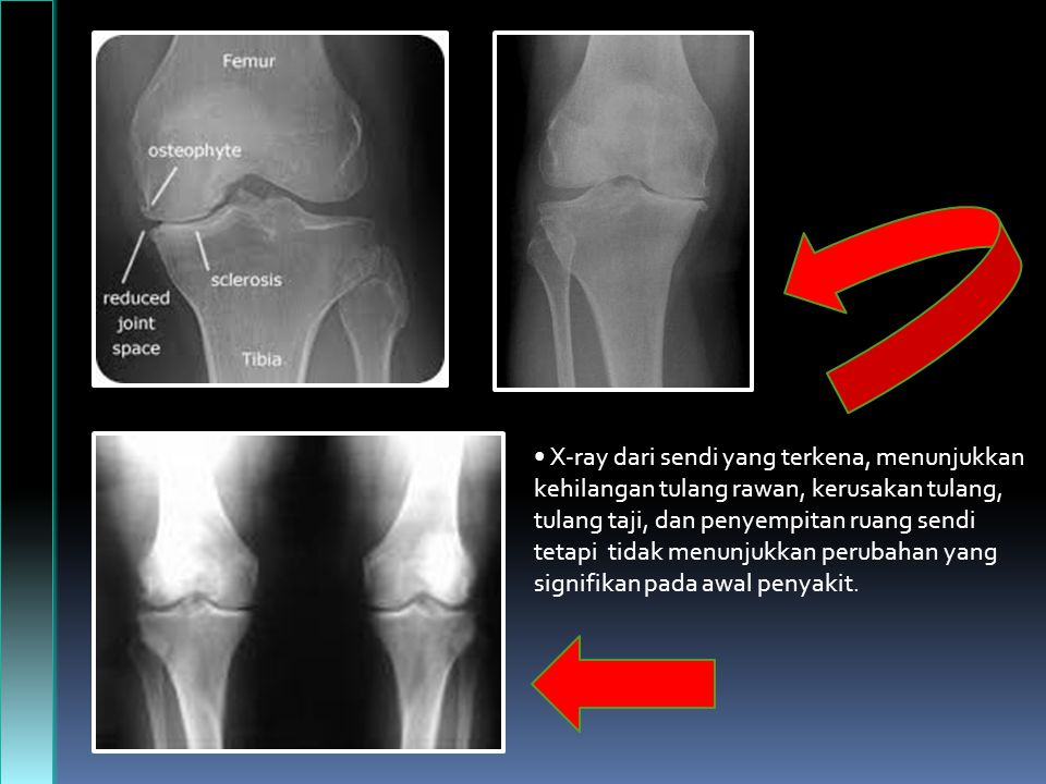 • X-ray dari sendi yang terkena, menunjukkan kehilangan tulang rawan, kerusakan tulang, tulang taji, dan penyempitan ruang sendi tetapi tidak menunjukkan perubahan yang signifikan pada awal penyakit.