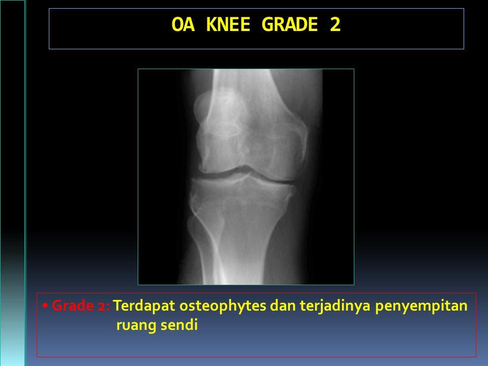 OA KNEE GRADE 2 • Grade 2: Terdapat osteophytes dan terjadinya penyempitan ruang sendi