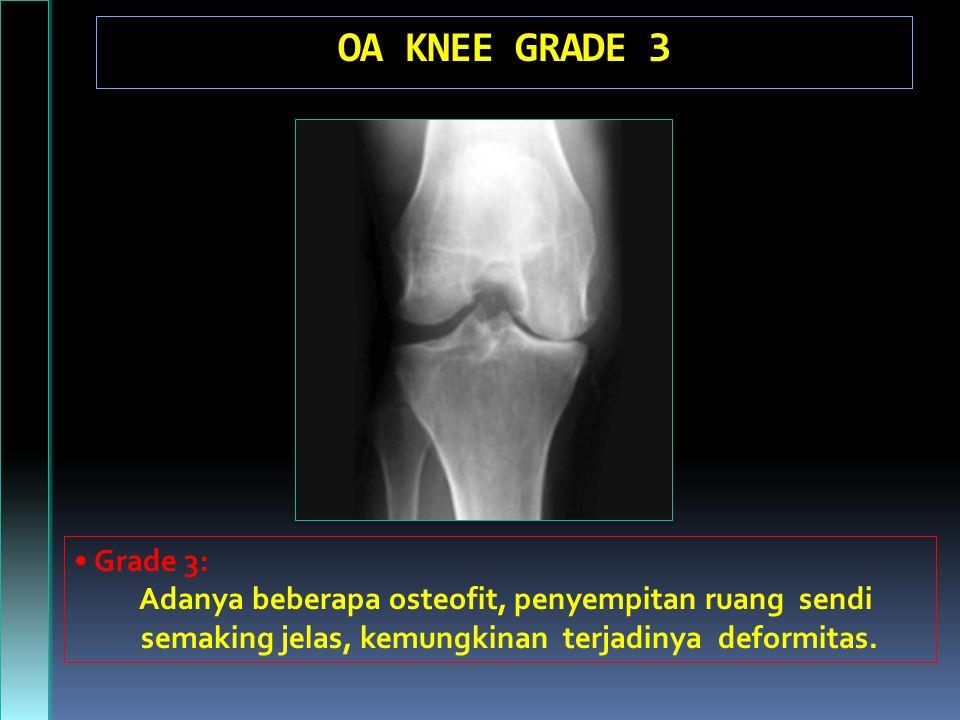 OA KNEE GRADE 3 • Grade 3: Adanya beberapa osteofit, penyempitan ruang sendi.