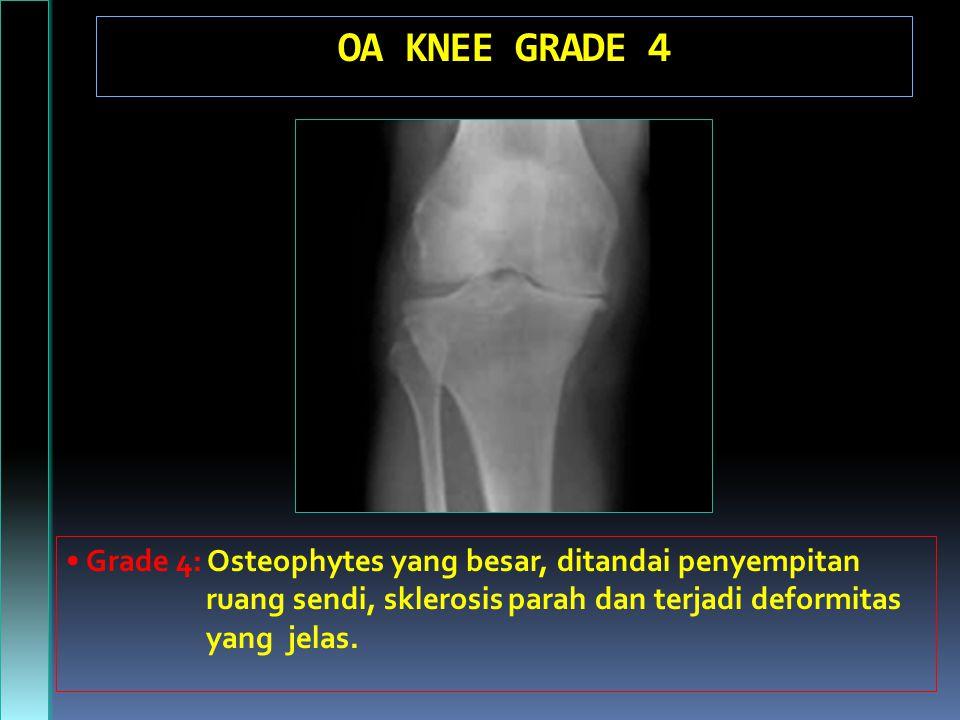 OA KNEE GRADE 4 • Grade 4: Osteophytes yang besar, ditandai penyempitan. ruang sendi, sklerosis parah dan terjadi deformitas.