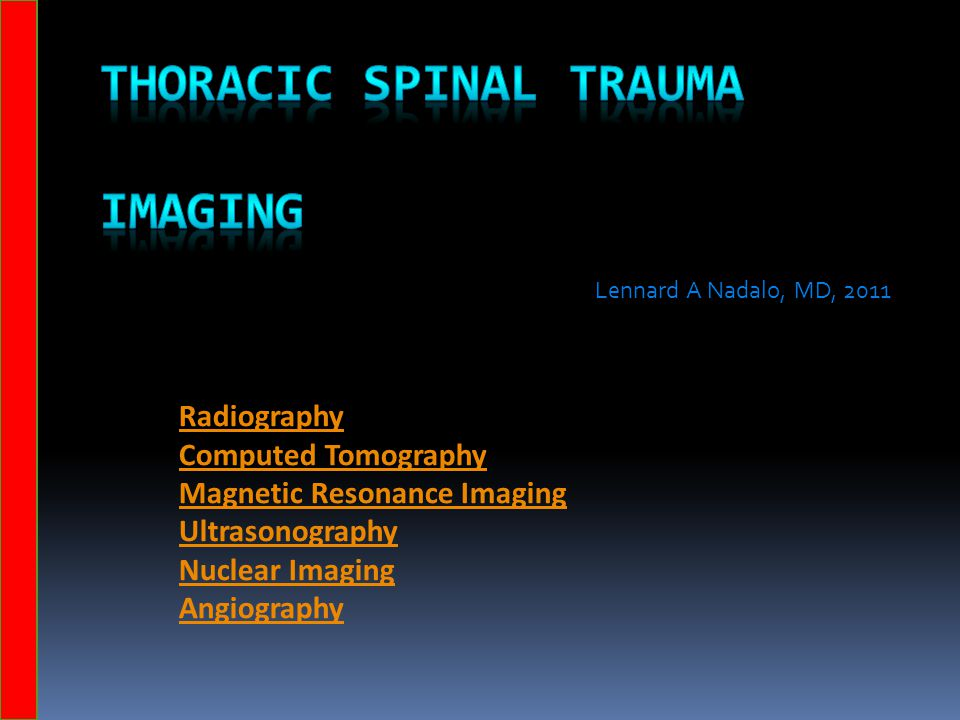 Thoracic Spinal Trauma Imaging