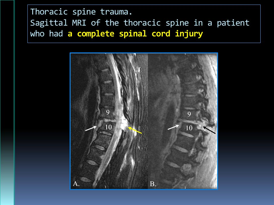 Thoracic spine trauma.