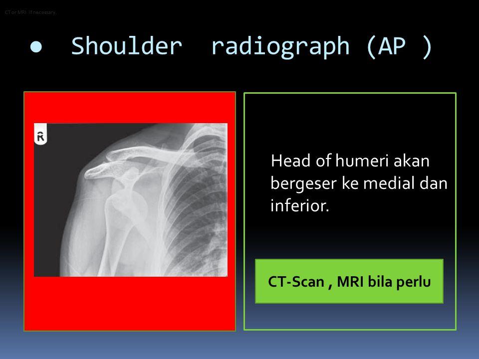 ● Shoulder radiograph (AP )