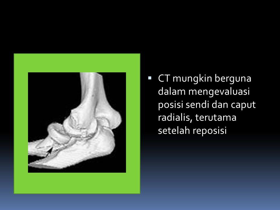 CT mungkin berguna dalam mengevaluasi posisi sendi dan caput radialis, terutama setelah reposisi
