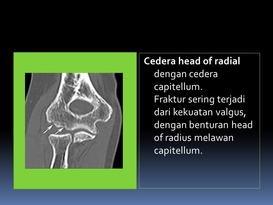 Cedera head of radial dengan cedera capitellum