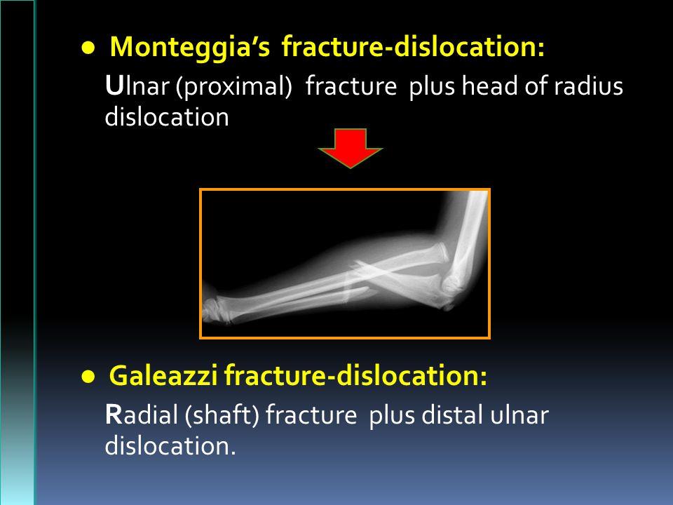 ● Monteggia's fracture-dislocation: