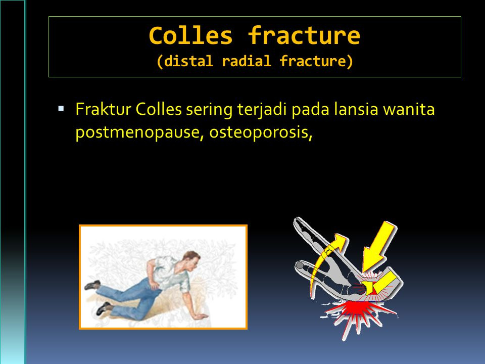 Colles fracture (distal radial fracture)