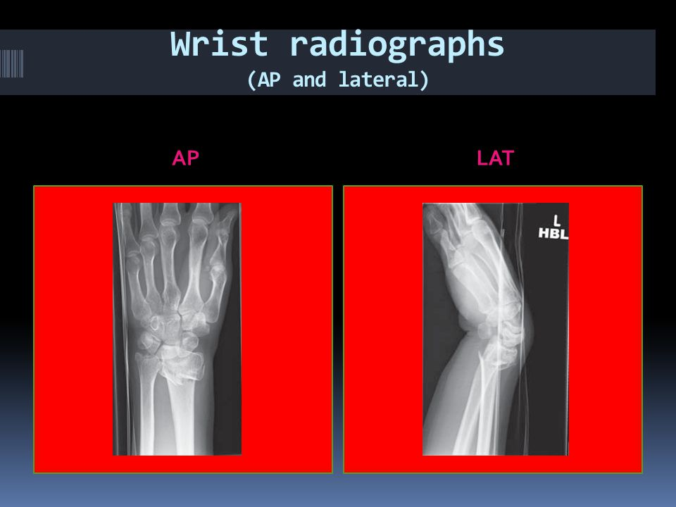 Wrist radiographs (AP and lateral)