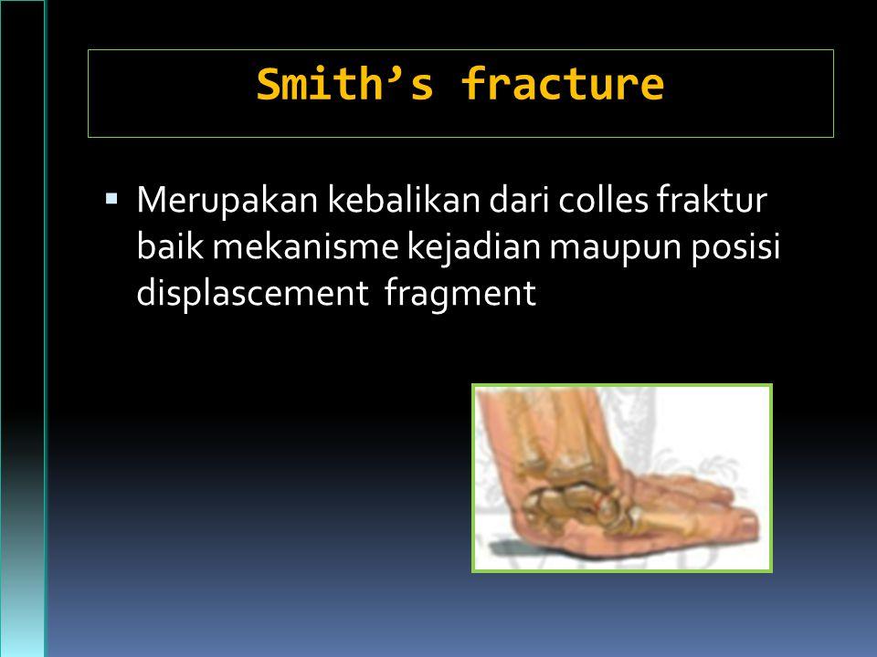 Smith's fracture Merupakan kebalikan dari colles fraktur baik mekanisme kejadian maupun posisi displascement fragment.