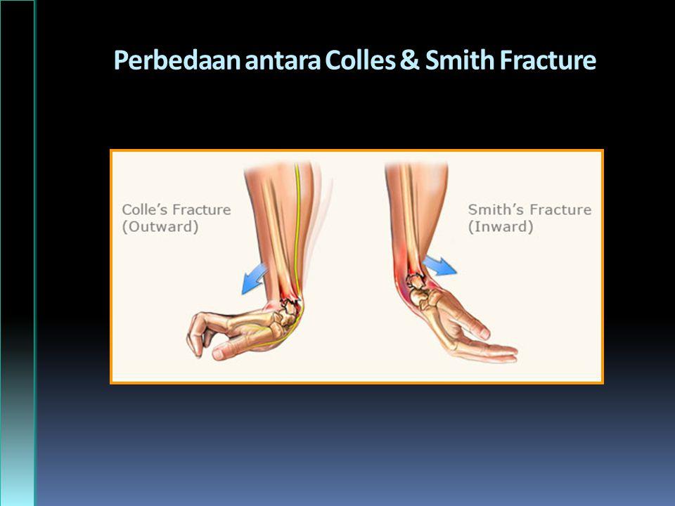 Perbedaan antara Colles & Smith Fracture