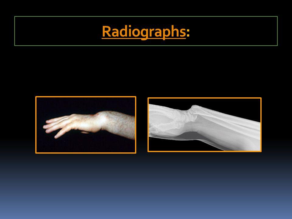 Radiographs: