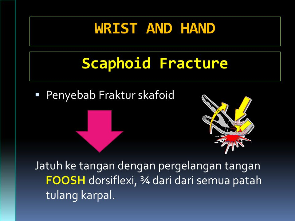 WRIST AND HAND Scaphoid Fracture