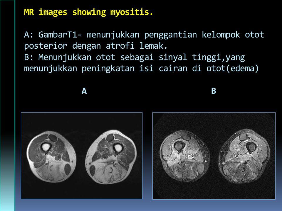 MR images showing myositis